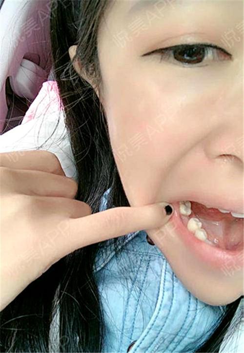 听别人说种植牙是现在最好的技术,安排了种植手术