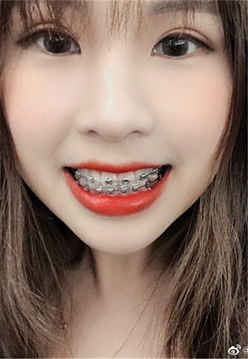 牙齿正畸仅仅是将牙齿排齐、解决功能问题那么简单了