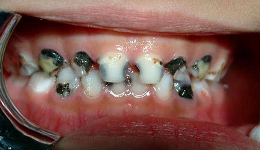 黑牙治疗要多少钱