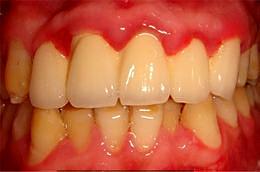 牙龈炎的病因、危害及防治方法