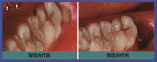 长智齿牙龈肿痛怎么办