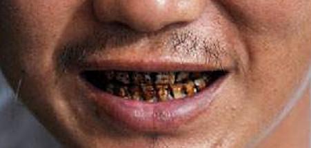 造成牙齿黑的原因有哪些