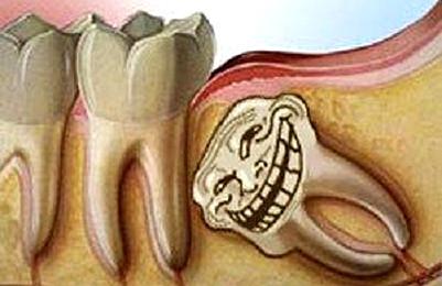 拔智齿创口多久能恢复?