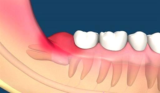 哪些牙齿需要被拔除?