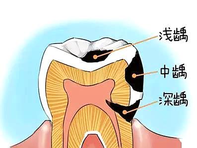 蛀牙—痛苦的源泉!