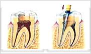 北京虫牙根管治疗多少钱