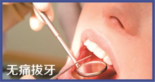 北京无痛拔牙价格是多少