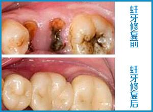 北京治疗小孩龋齿哪家医院正规