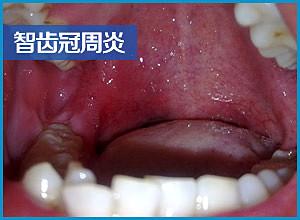 北京拔一颗智齿的价格是多少