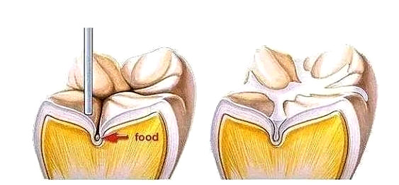预防蛀牙最有效的方法——窝沟封闭