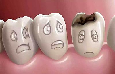 蛀牙坏到牙神经,还有救吗?