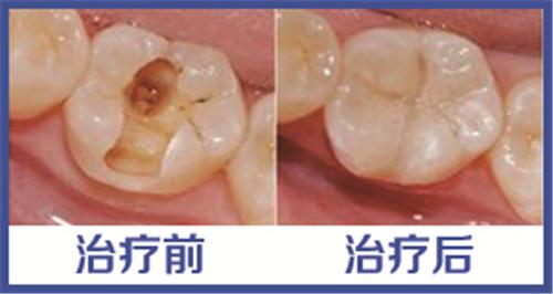 牙齿里有个洞怎么办
